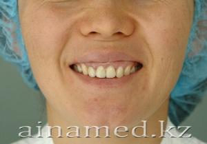 до липофиллинга при улыбке