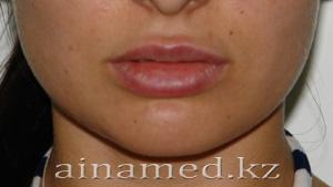 увеличение губ, после операции
