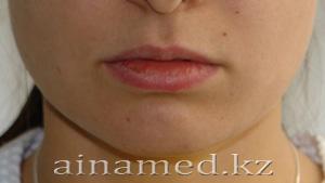 увеличение губ, до операции